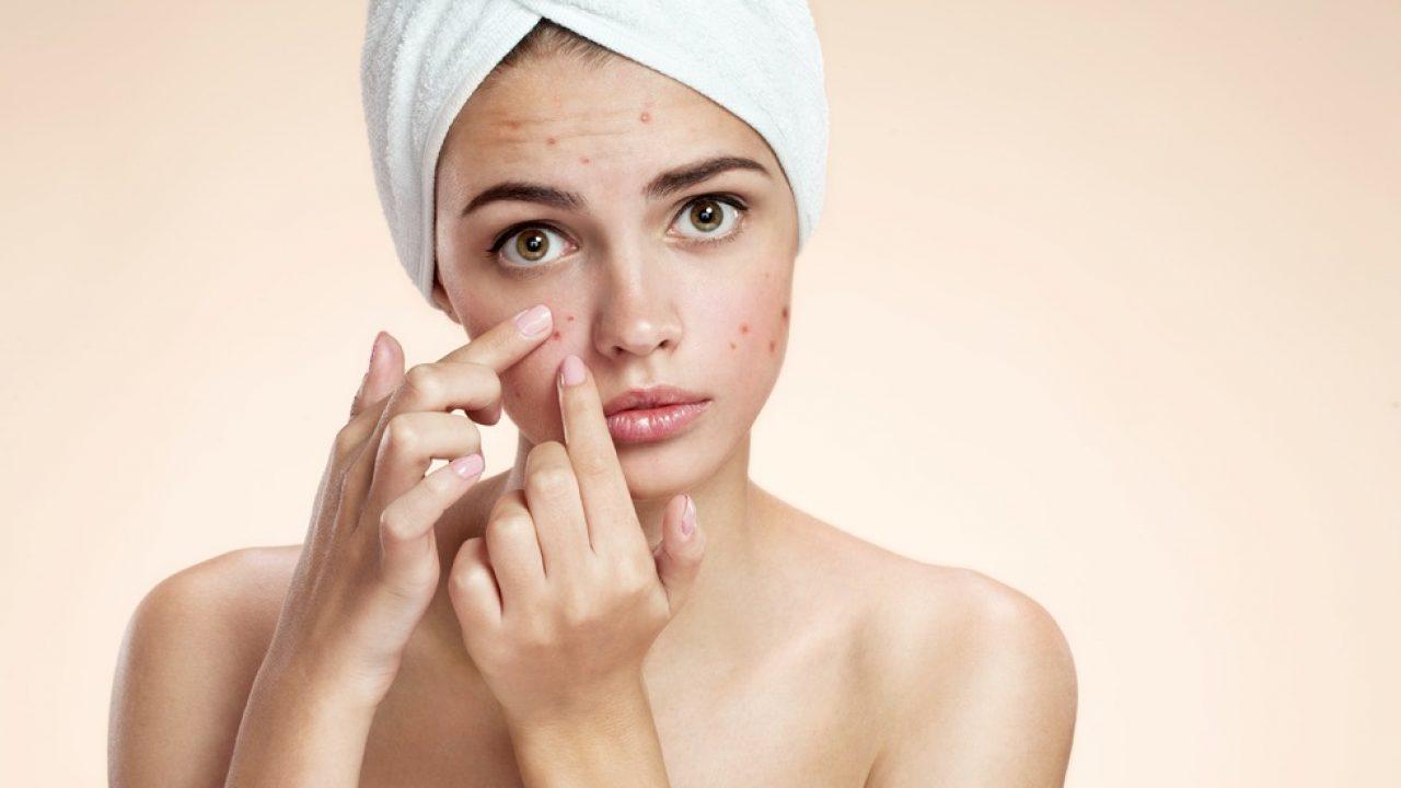 5 remedii naturale pentru a scăpa de acnee